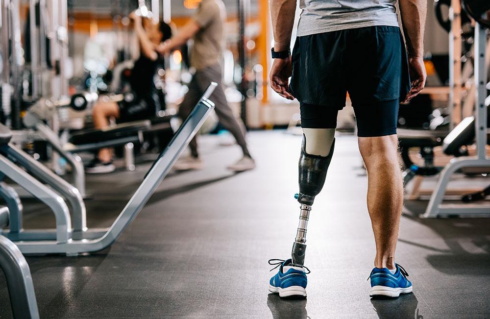 protesi arti superiori e inferiori